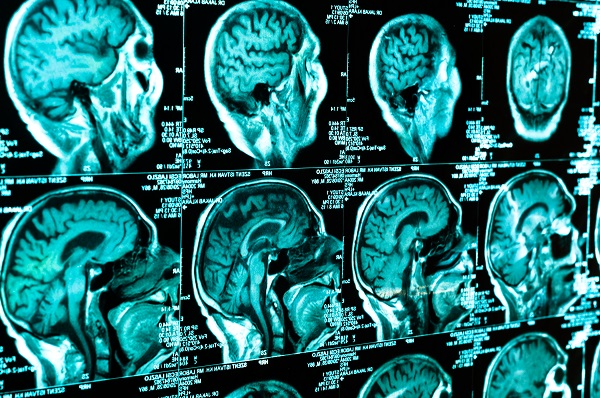 Traumatic Brain Injuries From Car Accidents